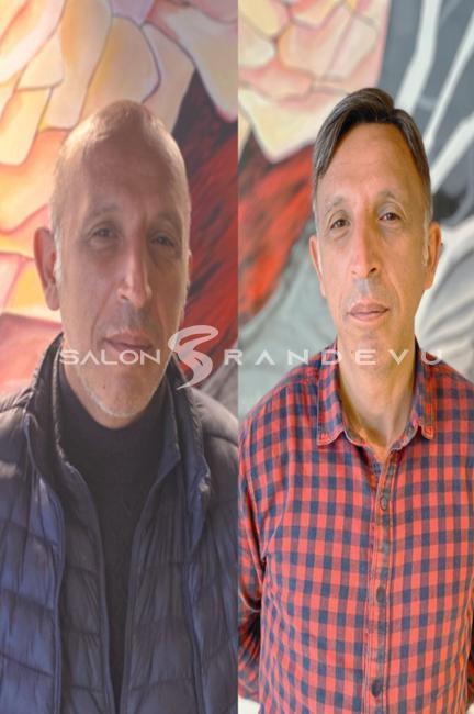 Tap Hair Türkiye Akademik Protez Saç olarak verdiği hizmetin fotoğrafı 4