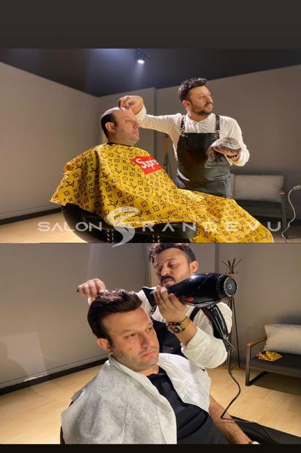 Tap Hair Türkiye Akademik Protez Saç olarak verdiği hizmetin fotoğrafı 2