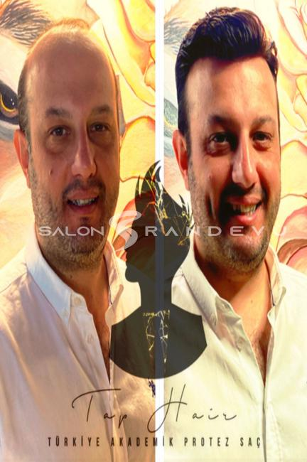 Tap Hair Türkiye Akademik Protez Saç olarak verdiği hizmetin fotoğrafı 3